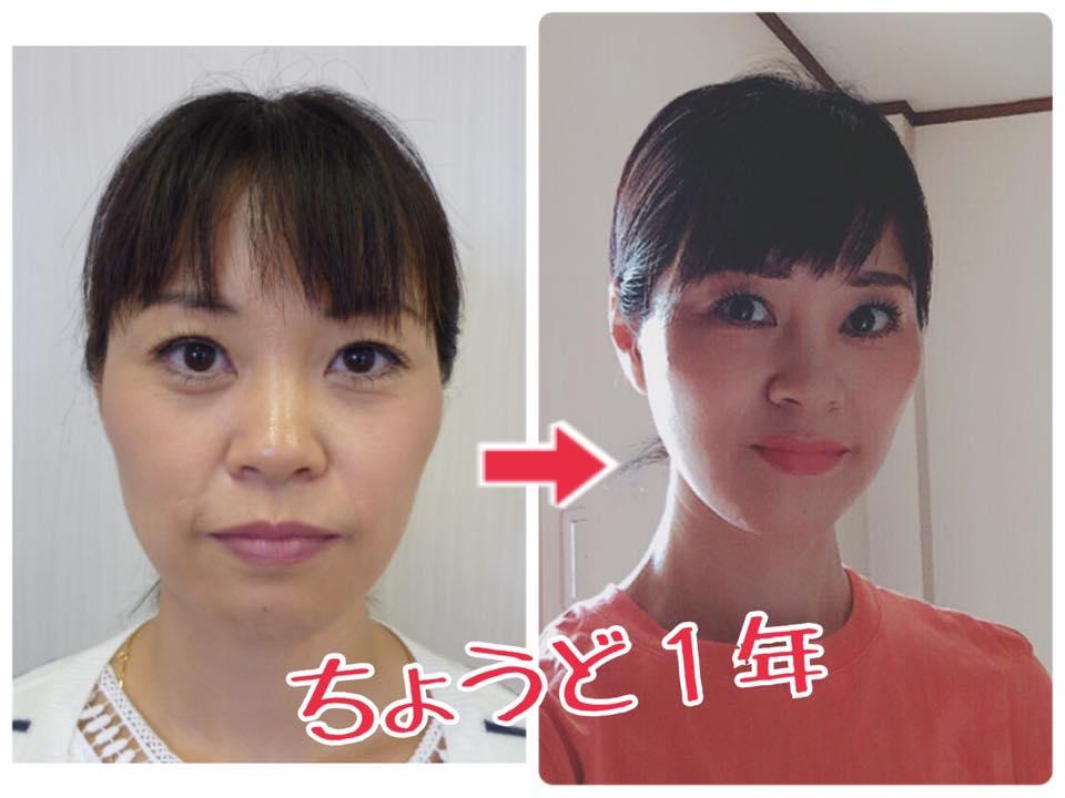 藤林尚美さん前と後.jpg