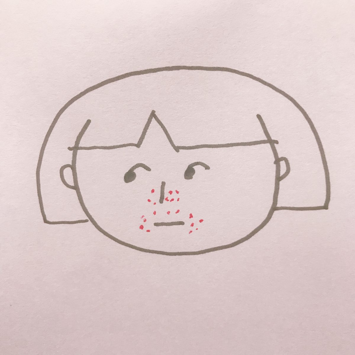 鼻と口の周りのニキビ